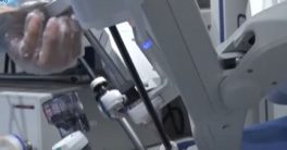 Operación de cirugía a 136 km de distancia en un hospital de China