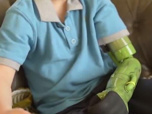 Gracias a un enfermo terminal, un joven consiguió un brazo ortopédico robotizado